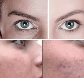 Manchas en la cara de una mujer